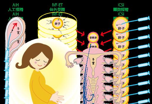 人工授精、体外受精、顕微授精