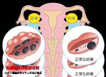 多嚢胞性卵巣症候群PCOS