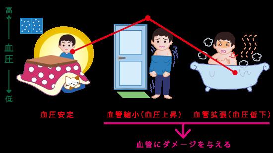 ヒートショック★漢方薬の厚生堂