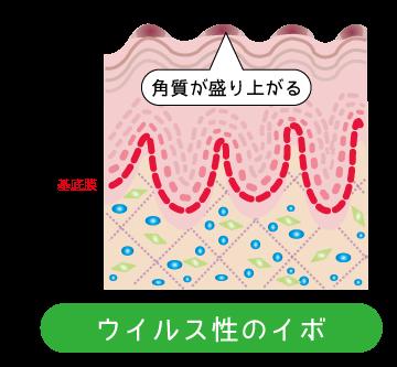 ウイルス性疣贅(ゆうぜい)イボ