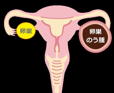 卵巣のう腫