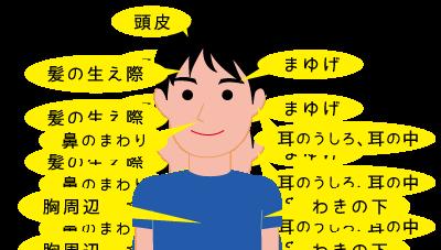 脂漏性皮膚炎のできやすい箇所★岡田厚生堂薬局