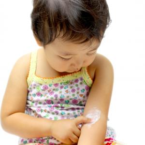 子どものアトピー性皮膚炎